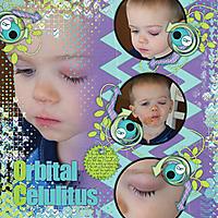 Orbital_Celulitus-_Dec_14.jpg