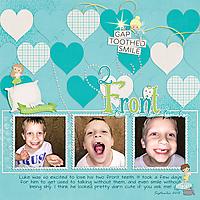 15-09_Lukes2FrontTeeth.jpg