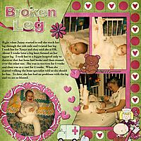 Jenny-1980-Broken-Leg.jpg