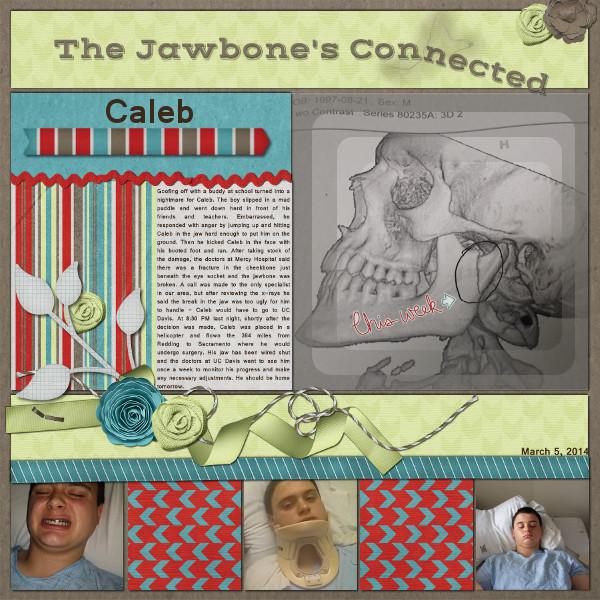 The Jawbone