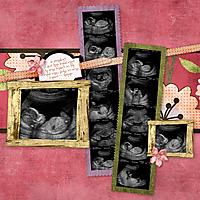 katy-ultrasound.jpg