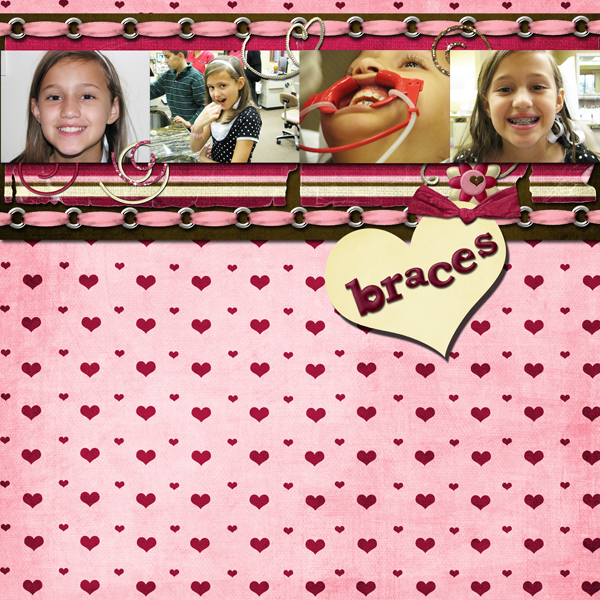 bracesflat2