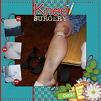 Knee_Surgery_pg2.jpg