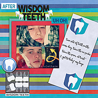 wisdom-teeth-boysweb.jpg